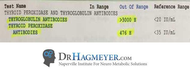 Dr Hagmeyer Hypothryoid Antibody Testing
