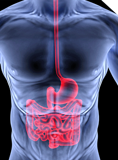 4 Step Protocol For Healing A Leaky Gut and Eliminating Parasites 1