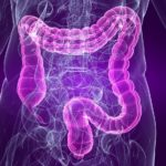 Irritable Bowel Syndrome - IBS - Relief in Naperville