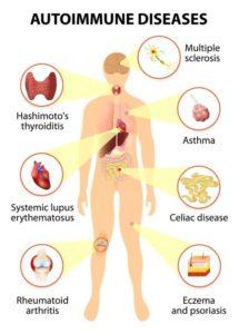 Reversing-Autoimmune-Disease