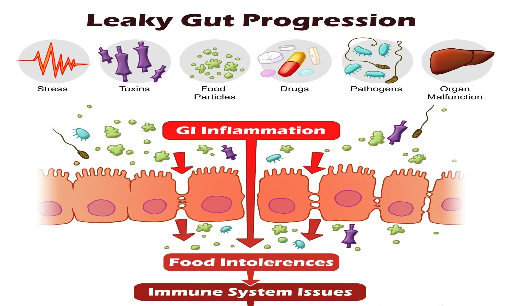 Causes of Leaky Gut Syndrome and Its Progression