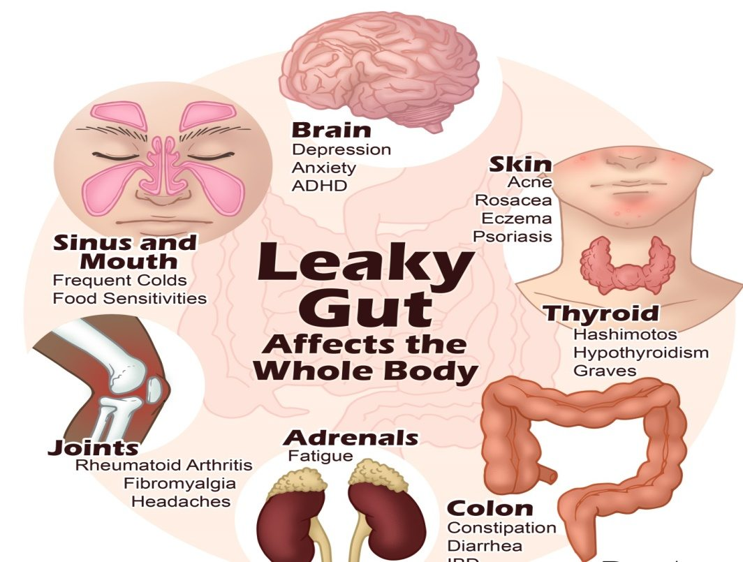 Leaky Gut Symptoms and Effects