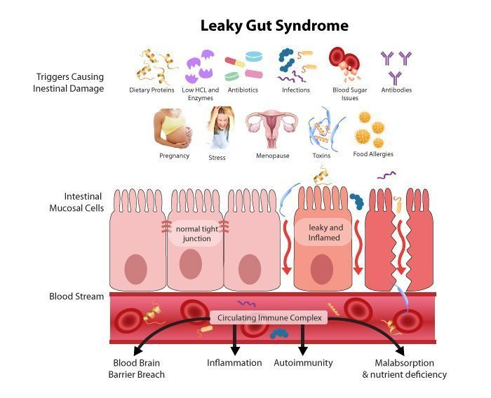 Leaky Gut Syndrome - Causes and Treatment Plans