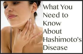 Jumpstarting Your Thyroid Naturally When Diagnosed with Hashimoto's 1