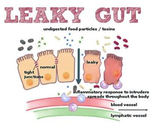 Leaky Gut Syndrome - Dr. Hagmeyer's Leaky Gut Graphic