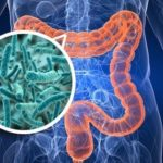 Causes of Intestinal Dysbiosis and Leaky Gut Syndrome