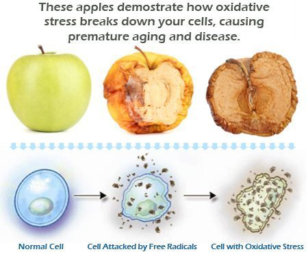 oxidative stress and autoimmune disease