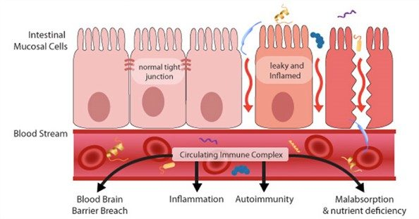 leaky gut circulating immune complex