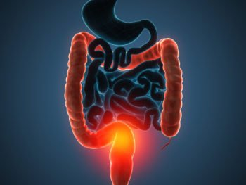 Ulcerative Colitis-A Holistic and Natural Approach 2