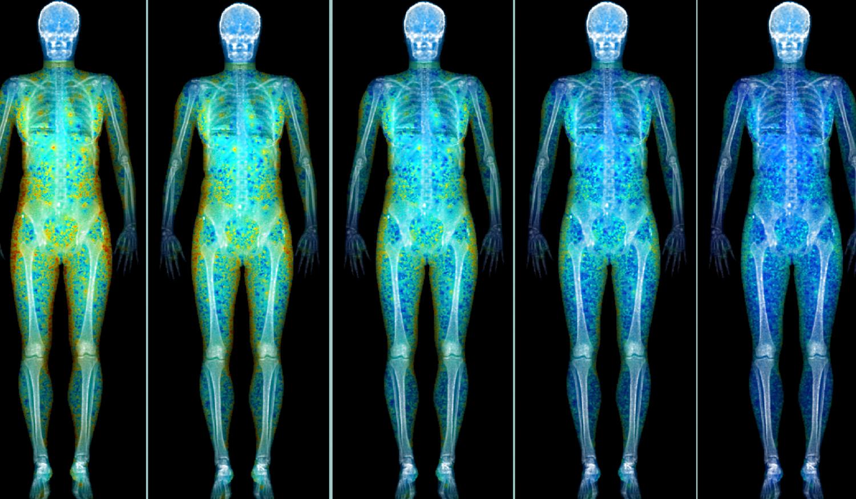 Bone Health Panel 4