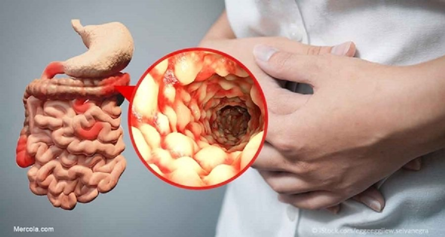 Image result for crohns