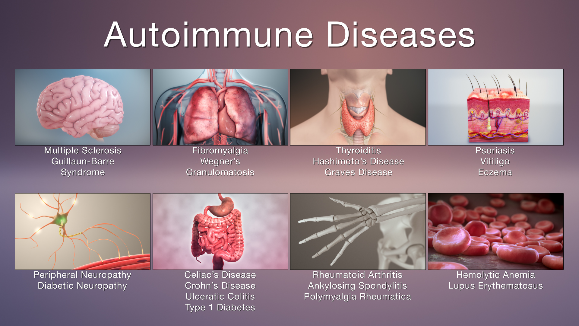 Autoimmune Reactivity Screen-(Predictive Antibody Screening)