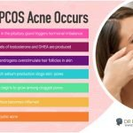 Understanding the Relationship Between PCOS and Acne